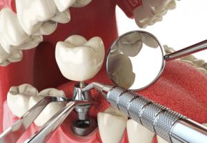 cirugia oral barcelona