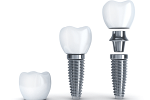 Implantologia Cubdens I