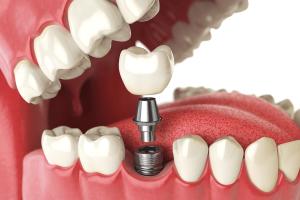 Implantologia Cubdens III