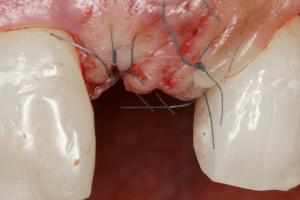 cirugia oral barcelona 4