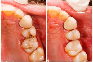 odontologia conservadora2