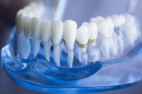 ortodoncia conservadora barcelona 1