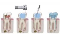 ortodoncia conservadora barcelona 2