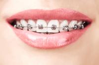 ortodoncia cubdens 1