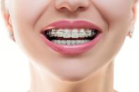 ortodoncia cubdens 4