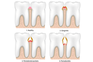 periodoncia cubdens 1