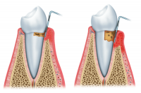 periodoncia cubdens 2