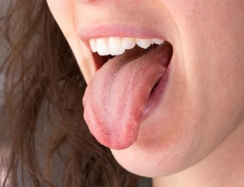 Por qué deberías limpiar tu lengua en cada cepillado