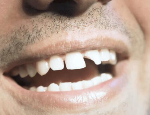 Se me ha roto un diente, ¿qué hago?
