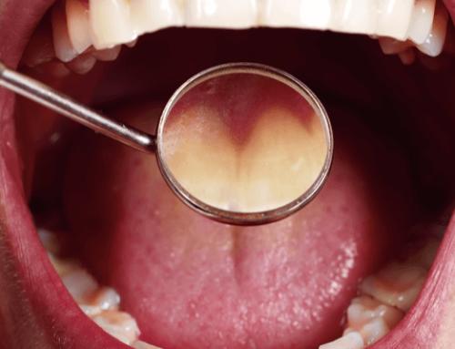 Hongos en la boca: causas y tratamiento