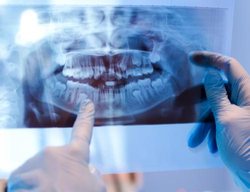 ¿Qué es la cirugía maxilofacial y cuándo se recurre a ella?