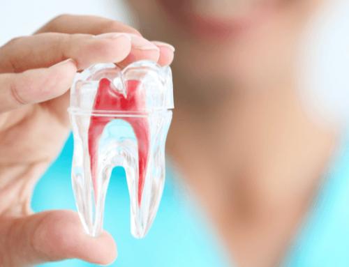 Endodoncia: qué es y en qué casos debe realizarse