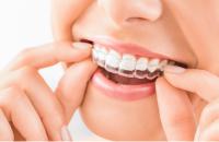 ortodoncia invisible barcelona