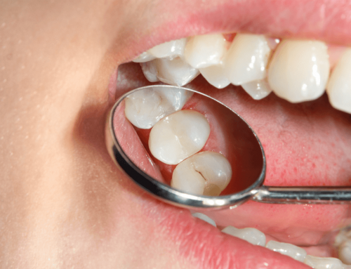 Caries interdentales: el enemigo invisible