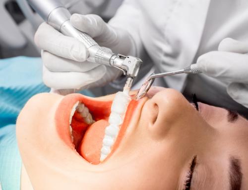 Limpieza dental: ¿Cada cuánto?