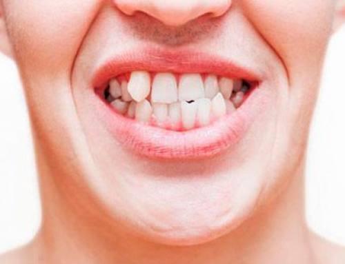 ¿Que es el apiñamiento dental? ¿Cómo solucionarlo?