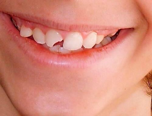 ¿Qué debemos hacer si se nos rompe un diente?
