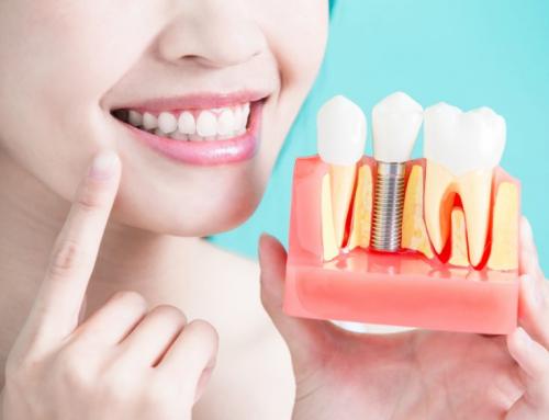 ¿Qué tan dolorosos son los implantes dentales? (Parte 2).